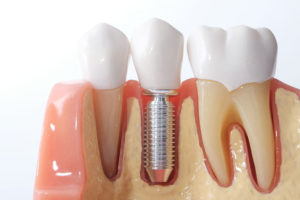 草加ファミリー歯科のインプラント