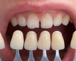 歯が黄色い