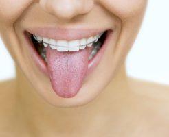 矯正歯科治療メニュー