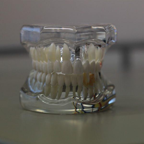 歯とインプラントのちがい