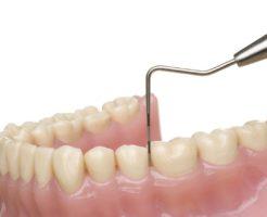 歯周病の治療